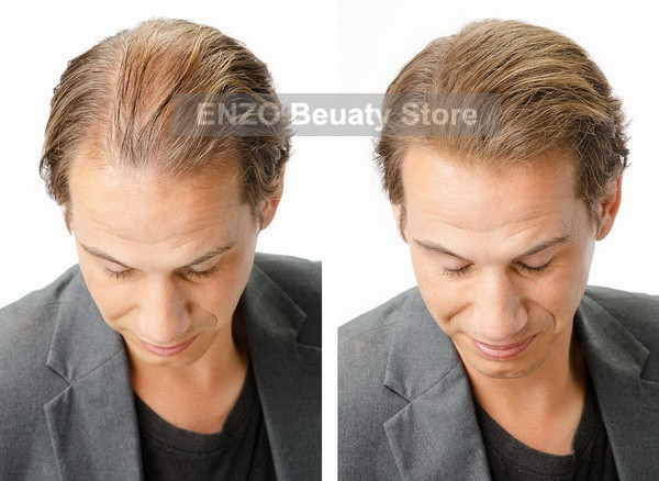 male hair extensions thinning hair image collections - hair