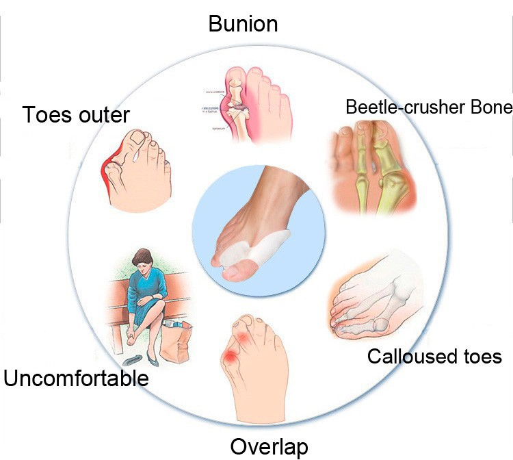 how to stop bunion pain