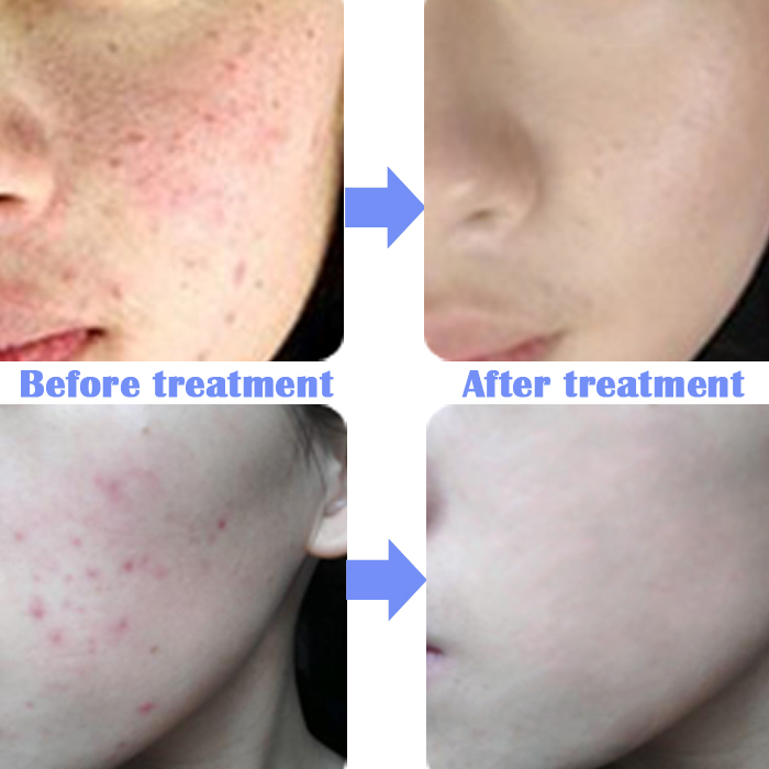 Face Care Acne Scar Removal Cream Spots Corrector Pigmentation Skin Treatment Whitening 20g - BYH Beauty and Health store