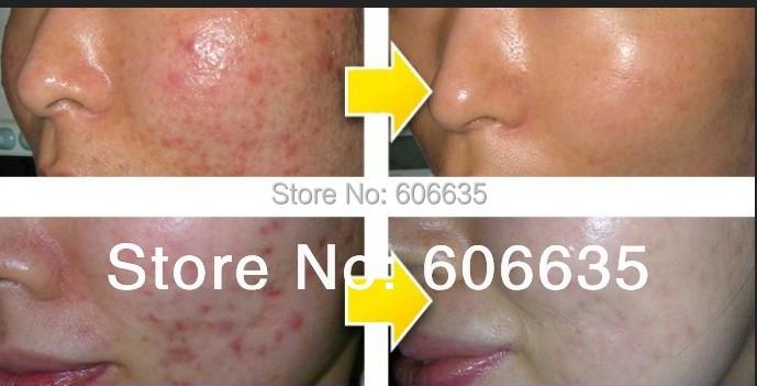 2014 free ship Acne cream whitening cream blain chinese herbal medicine products acne remove scar(China (Mainland))