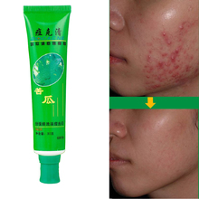 30g Face Skin Care Unisex Adult Skin Care Anti-Acne Cream Ointment Acne Removal Unguent Acne Treatment and Scar Repair(China (Mainland))