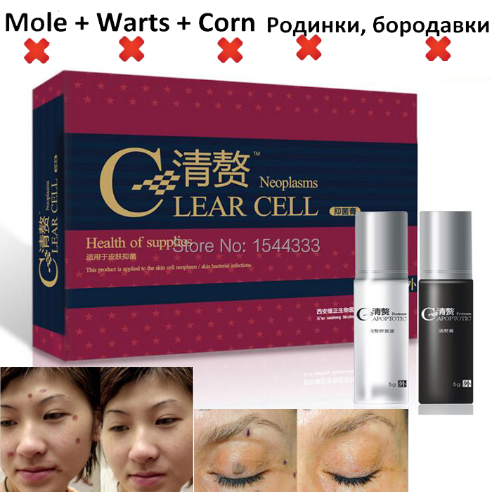 Skin Tag Remover, Mole Wart Remover Of Flat Warts Removal clavus Plus Rejuvenation Speckle Herbal Extract For red Dash Essence(China (Mainland))