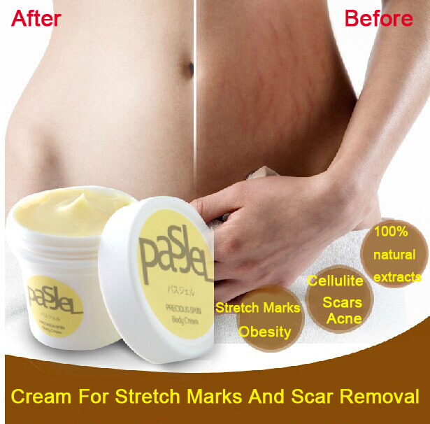 Cream For Stretch Marks And Scar Removal Powerful To Stretch Marks Maternity Skin Body Repair Cream Remove Scar Care Postpartum(China (Mainland))