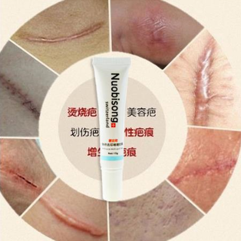 Nuobisong Facial Scar Removal Cremas Facial Spots Treatment Whitening Face Cream Stretch Marks moisturizing(China (Mainland))