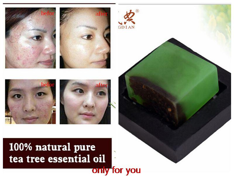 powerful acne remover! 100% Pure tea tree essential oil soap acne treatment and Remove whelk shrink pore face care facial soap<br><br>Aliexpress