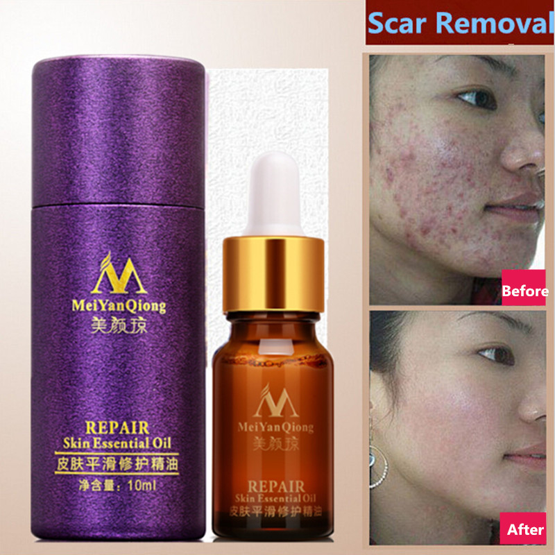Brand MeiYanQiong Natural Scar Nutrition Essence Extract Face Cream 10ML Moisturizing Whitening Oil Control Acne Treatment Care(China (Mainland))