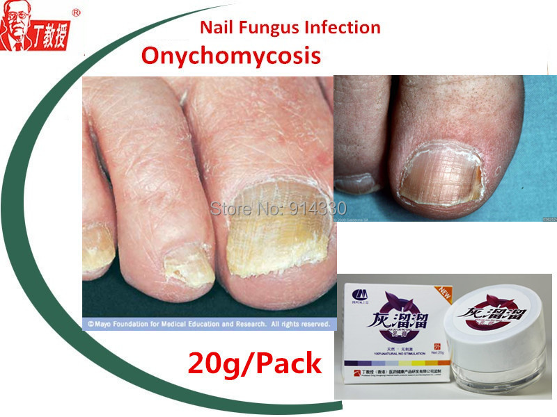 4packs Nail Fungus Treatment Disease Onychomycosis Fungal Toenail Finger Care