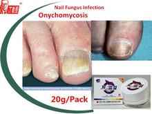 4packs Nail fungus treatment/  nail disease  / Onychomycosis  fungal toenail finger nail care
