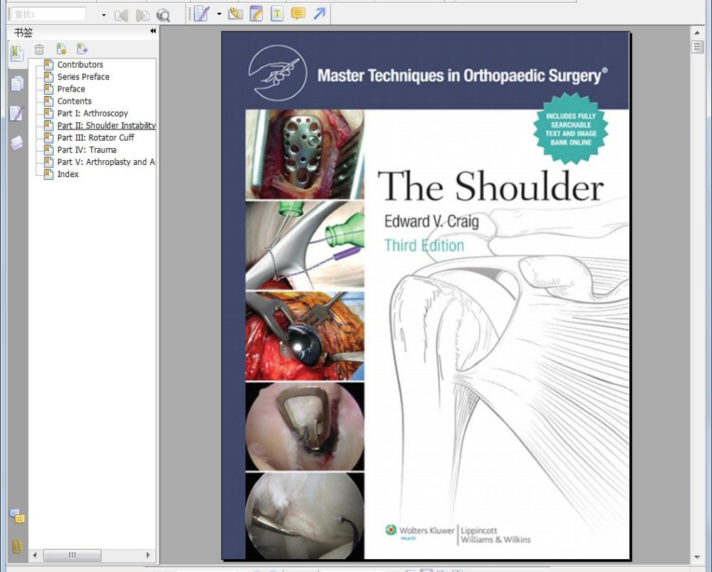 Master Techniques in Orthopaedic Surgery: The Shoulder 3rd(China (Mainland))