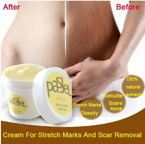 Thailand PASJEL Precious Skin Body Cream remove stretch marks treatment Postpartum repair whitening CREAM pregnancy scar removal