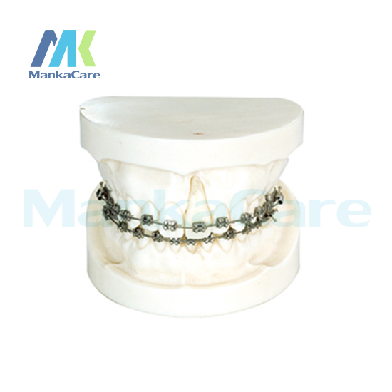 Фотография Manka Care - Ortho With Edgewise Bracket/Produced by imported resins, without articulator Oral Model Teeth Tooth Model