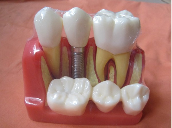Dental teeth model dental planting teeth model decomposition tooth model exploded removable dental teaching model