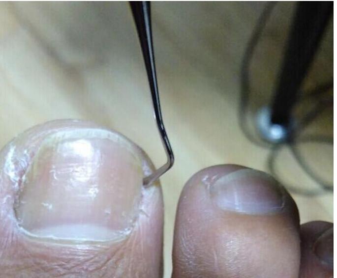 Инструмент для избавления вросшего ногтя в домашних…